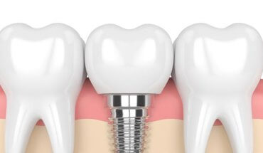 dental-implants-doncaster